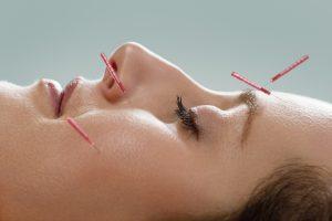 Profile of female acupuncture patient receiving facial acupuncture treatment